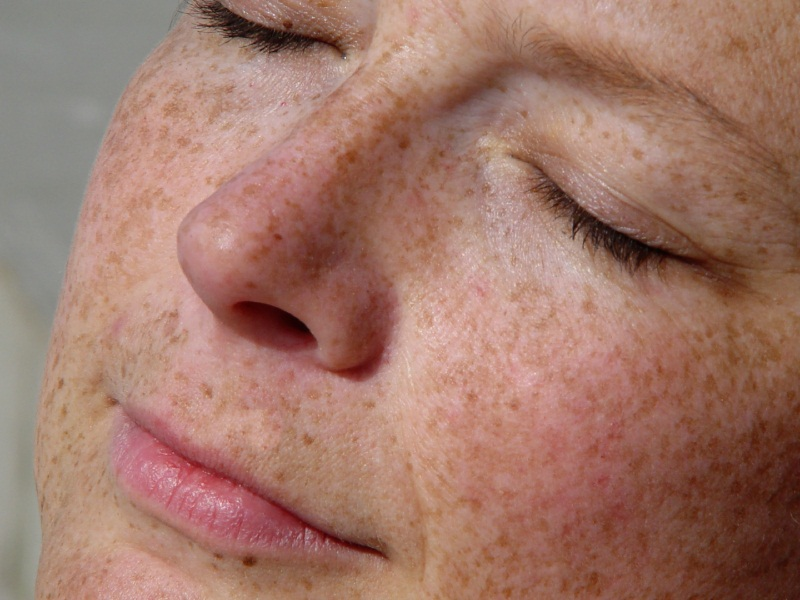 Image result for A Simple Explanation About Skin Pigmentation