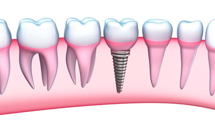Need To Know About Dental Implants