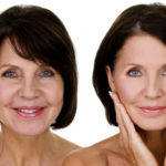 anti-aging-treatment-image