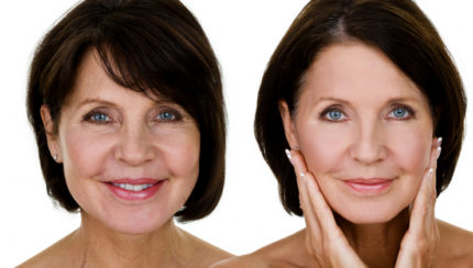 anti-aging-treatment-image