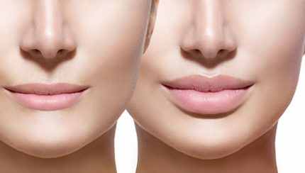 how-to-get-fuller-lips-options-1